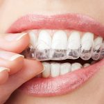 Tips on whitening your teeth